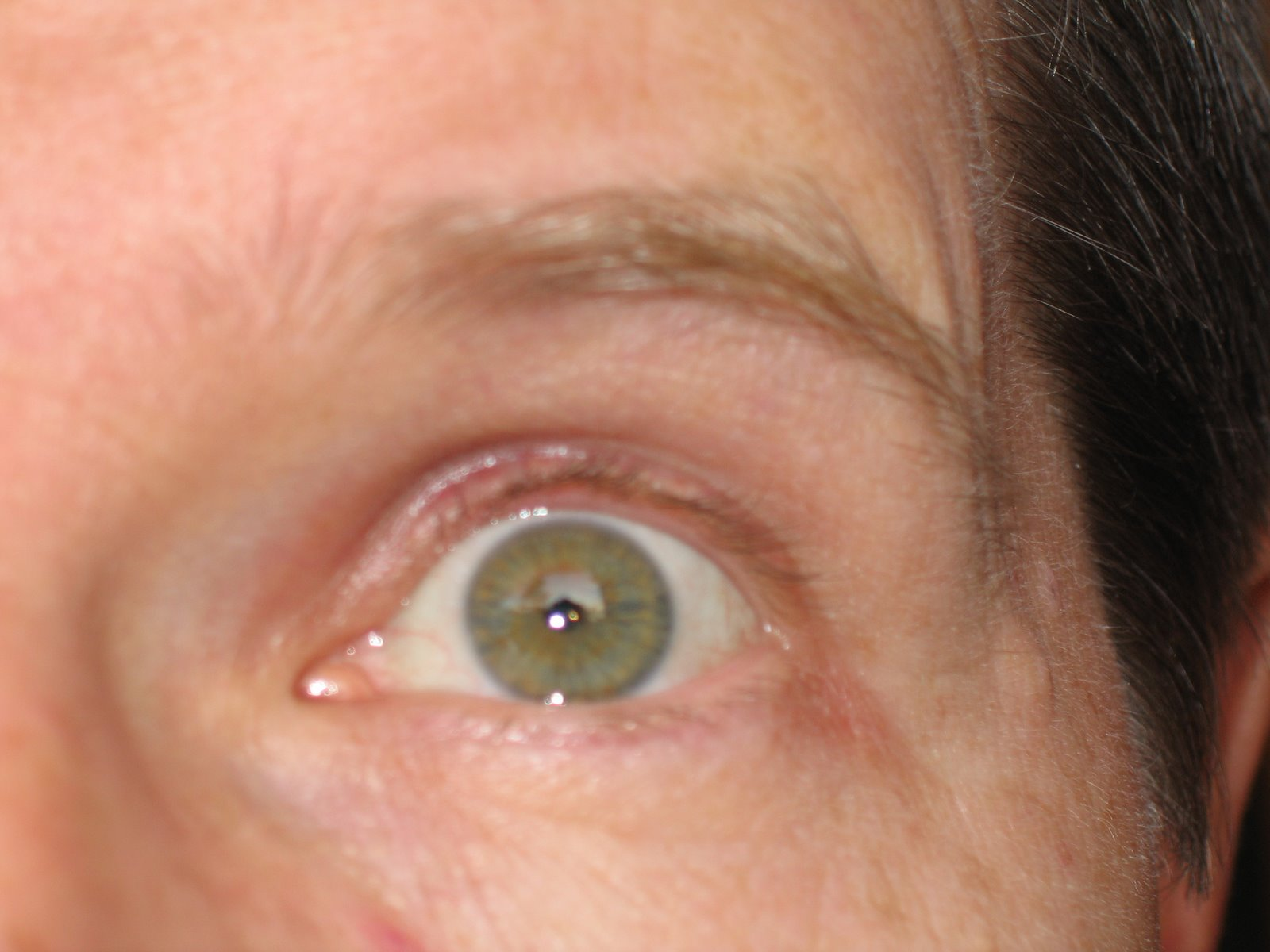 La anulación gv a atopicheskom la dermatitis