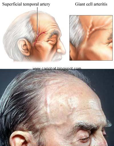 dureri pline de coapse de ce articulațiile scârțâie și rănesc