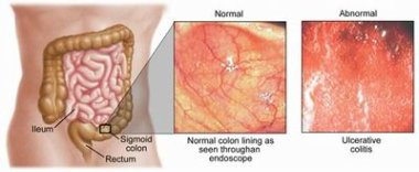Tenesmus Treatment: Tenesmus Causes & Symptoms