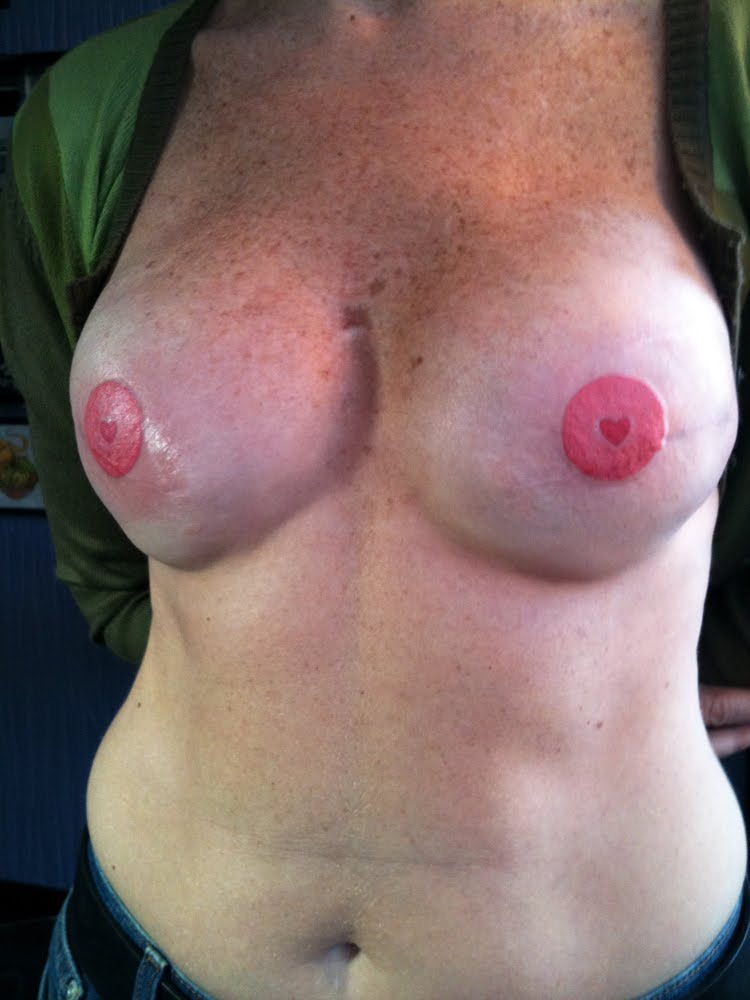 Double mastectomy breast reconstruction