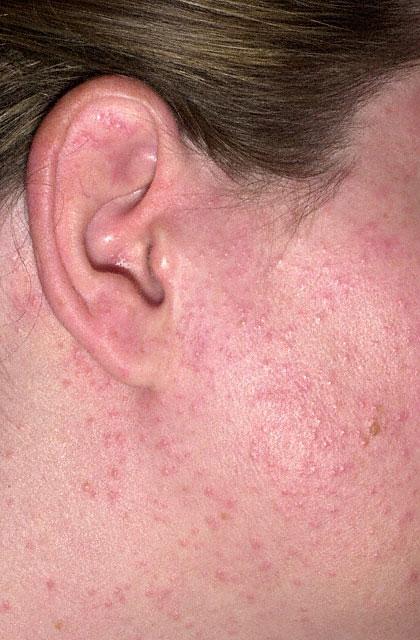 Sun Allergy Face A food allergy may cause: