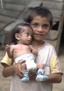 Desnutrición infantil | Prioridad a combatir