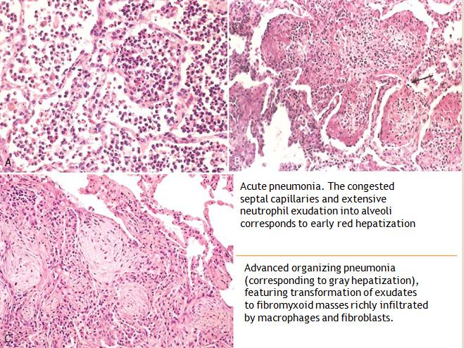 Serratia Marcescens Infection Oral