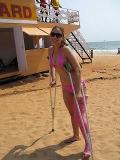 broken leg sex