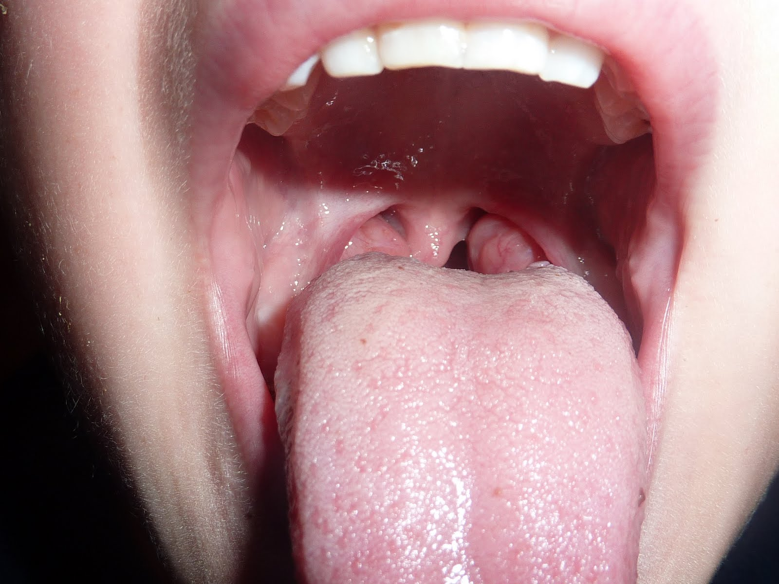 Pictures Of A Normal Throat 67