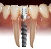tiempo de un implante dental