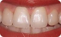 zirkonyum porselen diş kaplama