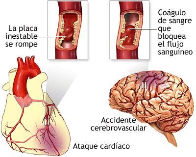 que es la hipertension pulmonar wikipedia