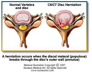 Operatie de hernie de disc Pagina 2