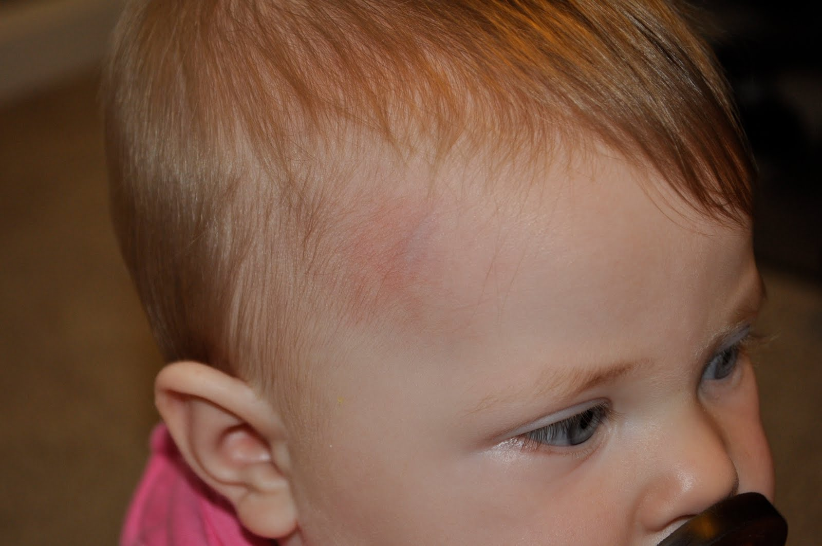 Head bump   Ramblings of the Ribble family