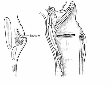 Medical Lecture Notes Online: Congenital Laryngeal Anomalies