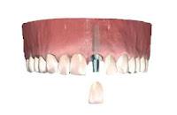 İmplant Tek Diş