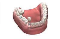 İmplant Azı ve Kesici Diş