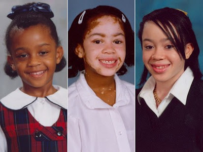 Did You Know That Did You Know That Vitiligo Is A Chronic Skin Disease