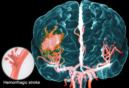 Healthy Life: A Visual Guide to Understanding Stroke
