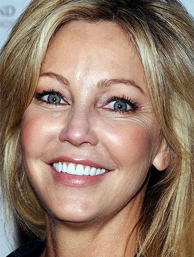 famous-plastic-surgery blogspot com: Way Too Much Facial