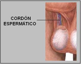 cordón espermático