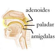 que es hipertrofia de adenoides