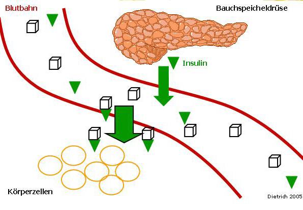 patofisiologi diabetes gestacional es