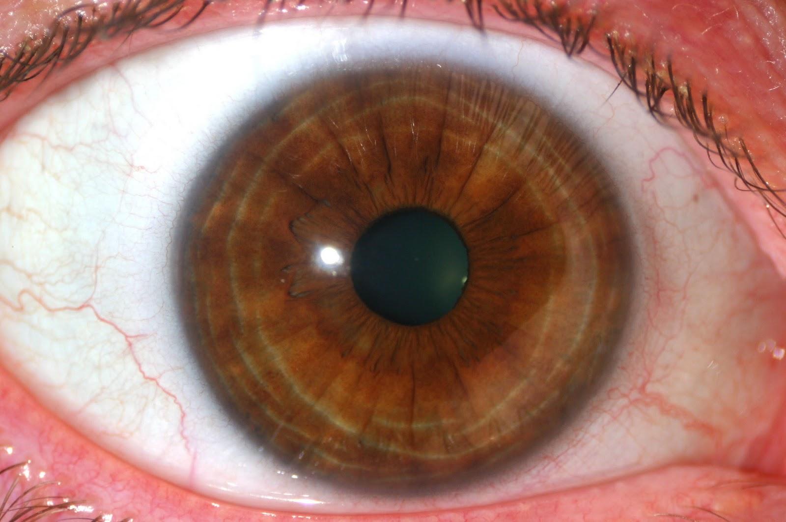 Eye Colors: Medium Brown Iris