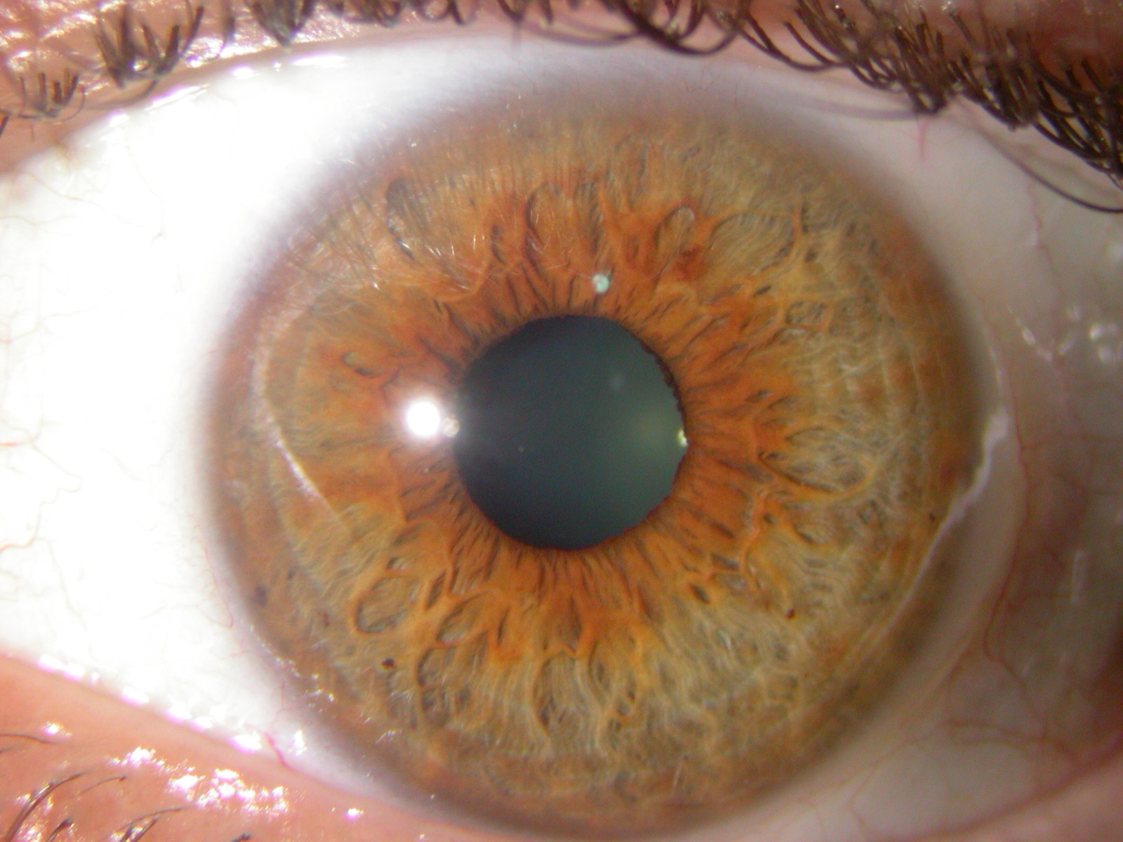 Eye Colors Iridology Iris Pictures