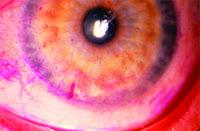 Olho com coloração rosa