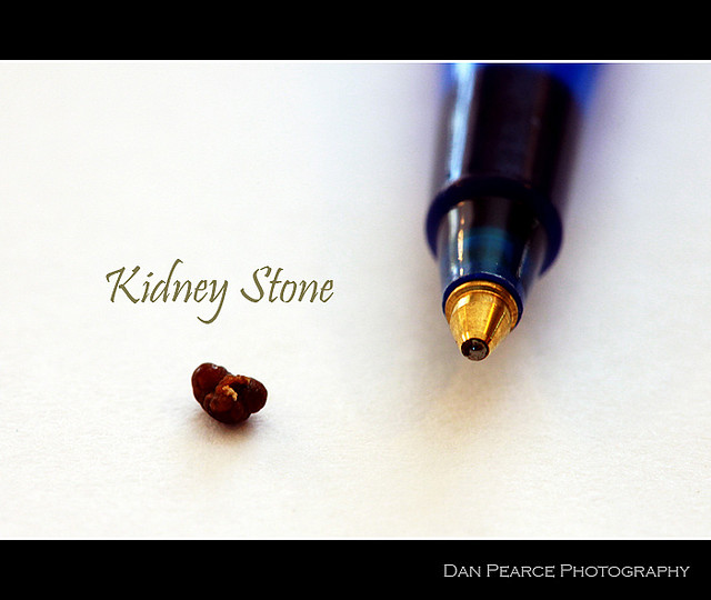 4mm Kidney Stone Related Keywords