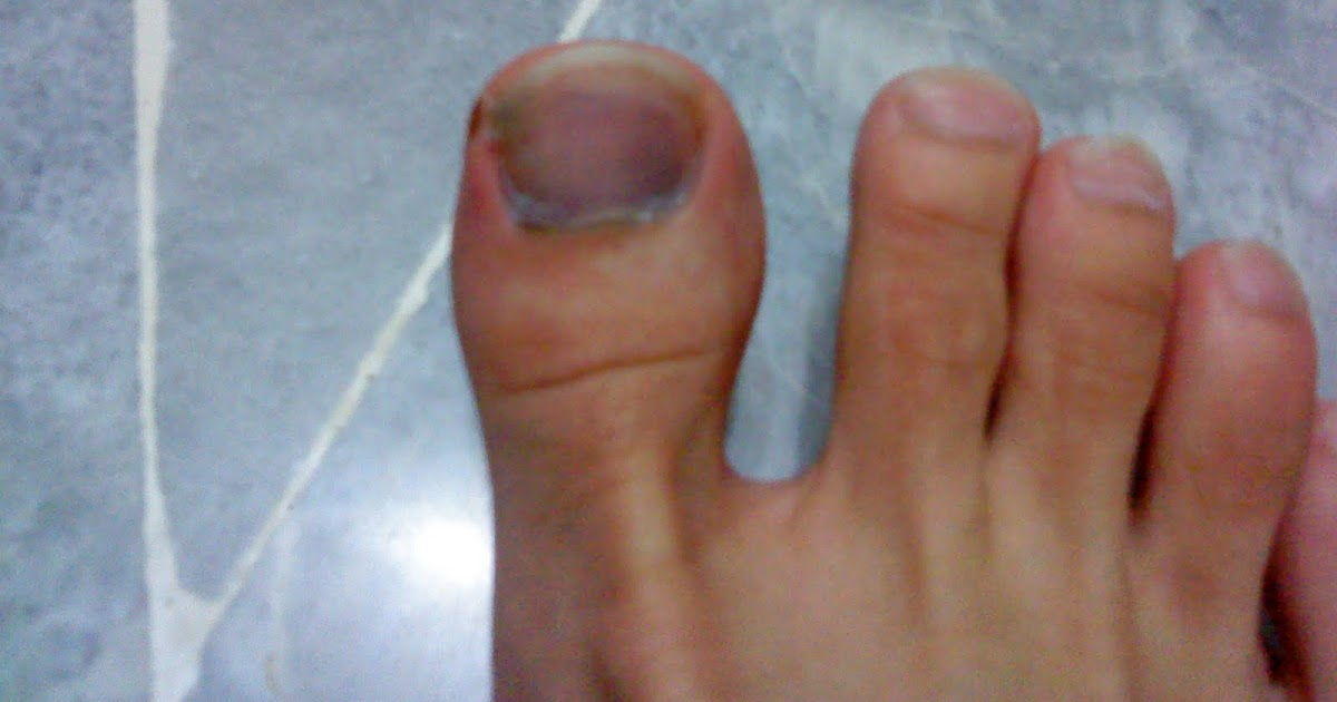 Injury to foot nail Stock Photo: 4054855 - Alamy