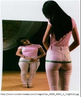 anorexia mirror male - photo #29