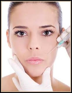 Botox en Rostro