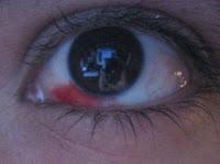 a mi hijo le salio un derrame en el ojo