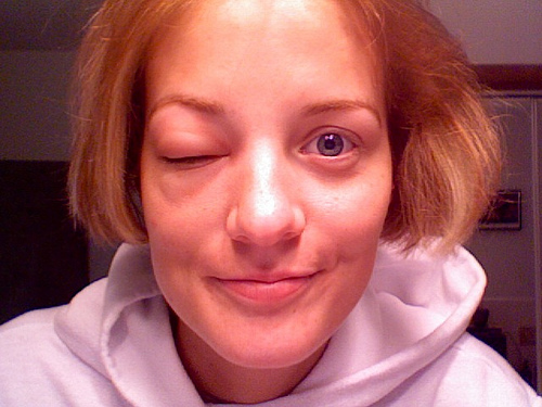 bee sting puffed face due to allergic reaction