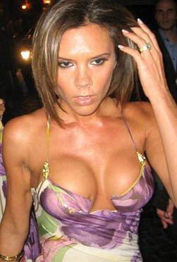 Fake looking breast implants