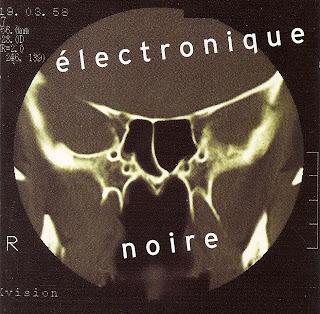http://3.bp.blogspot.com/_XP1ONSd0NVo/SYcRGuh3DPI/AAAAAAAAASc/JgMCcdL9qB4/s320/%C3%89lectronique+Noire.jpg