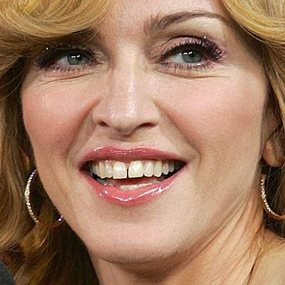 Does madonna have false teeth