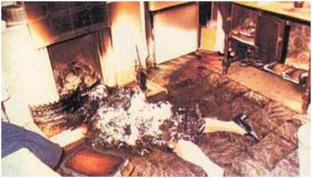 Fenomena Tubuh Manusia Terbakar Sendiri yang Masih Jadi Misteri