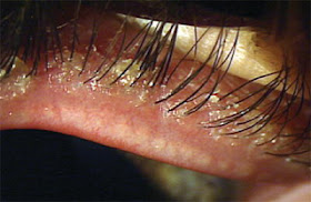 Demodex podle zdroje http://www.optometric.com/article.aspx?article=102974