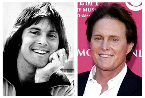 Plastic Surgery Before After Bruce Jenner Plastic Surgery