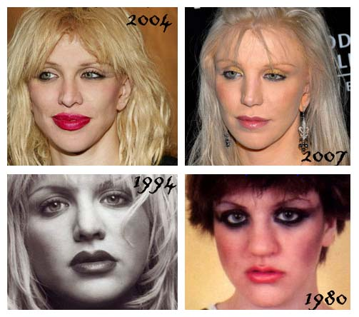 Courtney Love - Many faces before and after plastic surgery? (image hosted by plasticsurgerydoctors.blogspot.com)