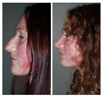 Plastic Surgery Before And After Chin Implants Before And