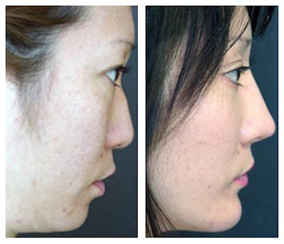 Plastic Surgery Before And After Chin Surgery Before And
