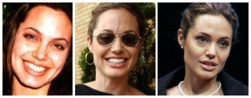 Plastic Surgery Before And After Angelina Jolie Rhinoplasty
