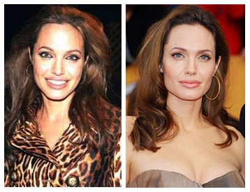 Angelina Jolie before and after rhinoplasty (nose job)? (http://plasticsurgerybeforeandafter.blogspot.com.es)