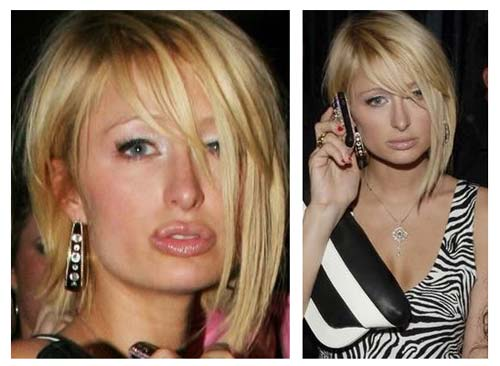 Paris Hilton Plastic Surgery Before After