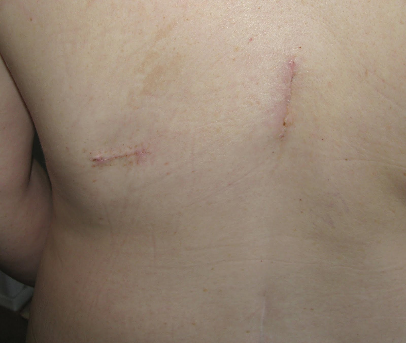 Spinal Nerve Stimulator Implant