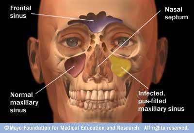 The Delano Observer I Have Sinusitis And Sinus Headache