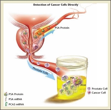 PCA3: Análisis de la próstata que evita biopsias múltiples y cirugías