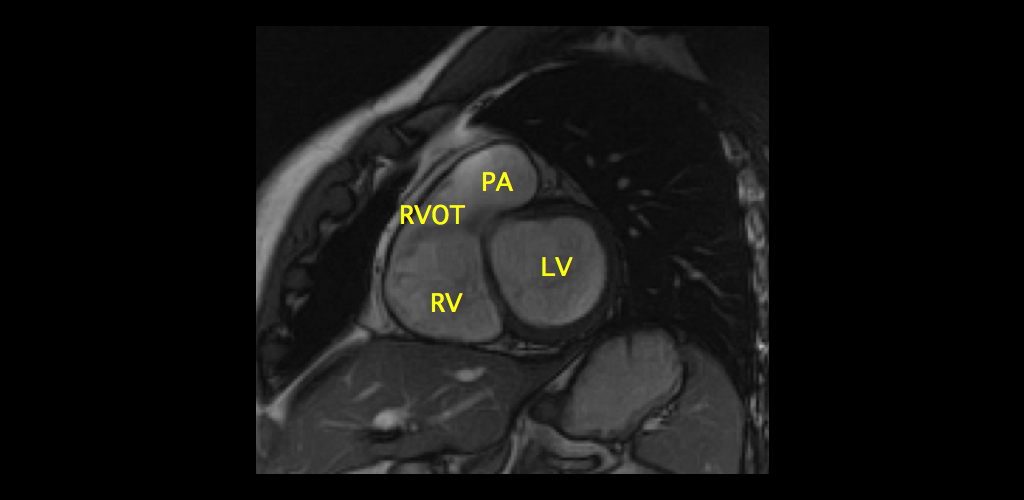 All About Mri Of The Hip Detailed Anatomy Radiology Kidskunstfo