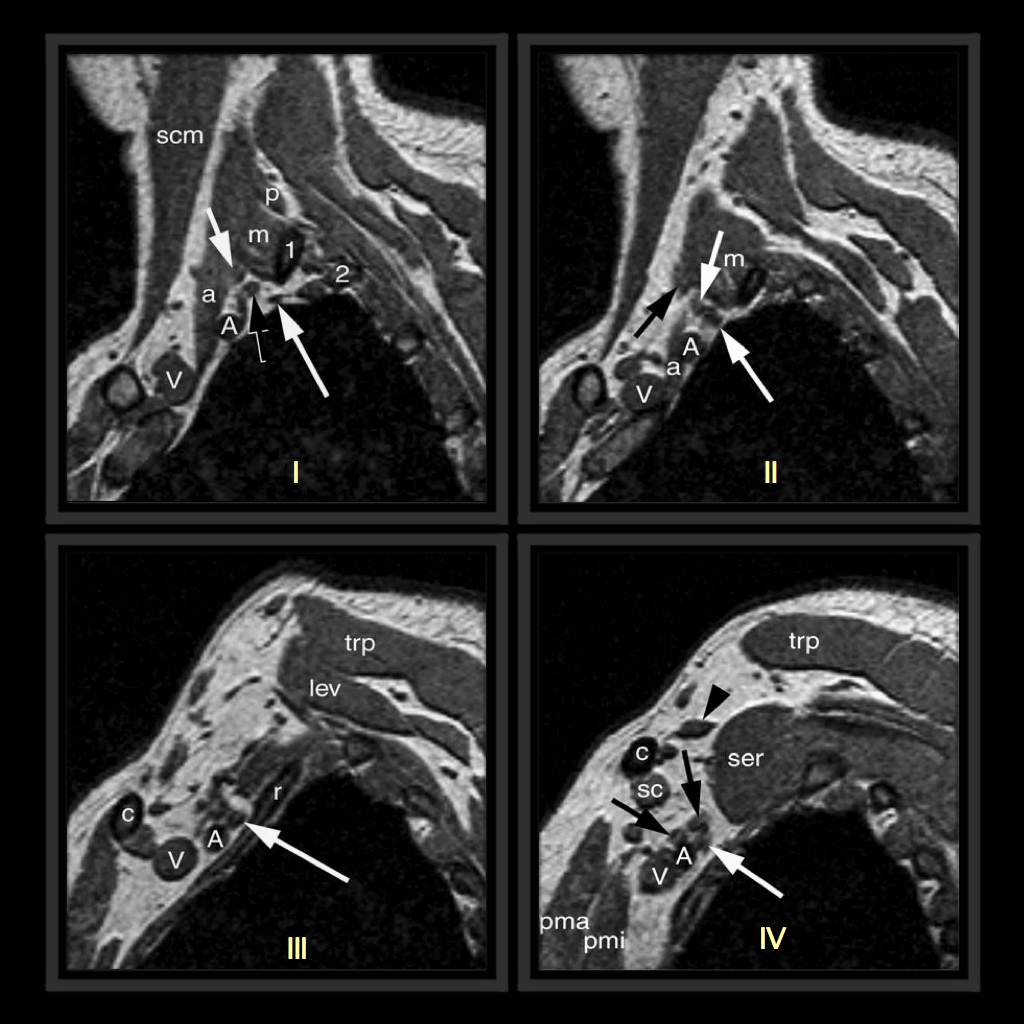 MRI BLOG: Brachial Plexus MRI (I/II)