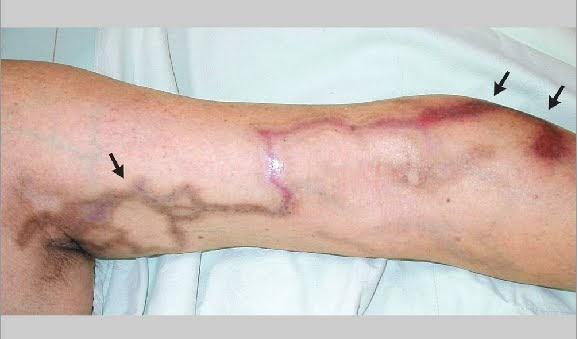 Doctors Gates A Cutaneous Side Effect Of Intravenous